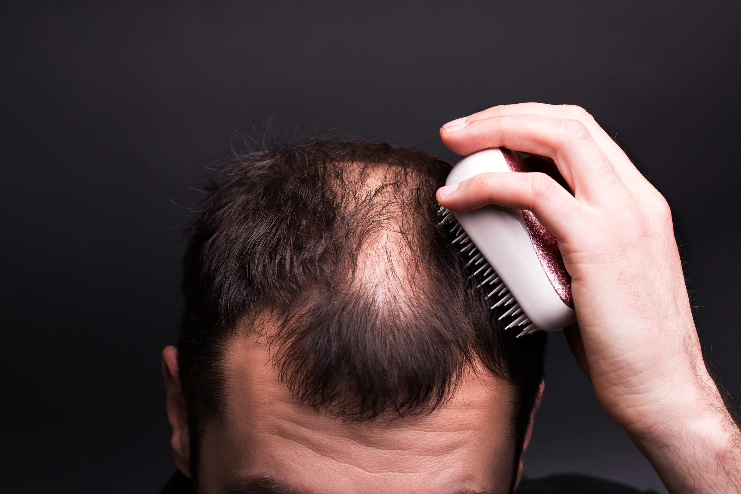 A man is combing his hair. Head with baldness. The problem of hair growth on the head.